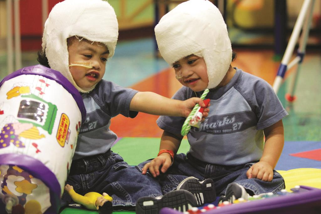 Once-Conjoined Twins, Now 12, Are Thriving | Hamodia com