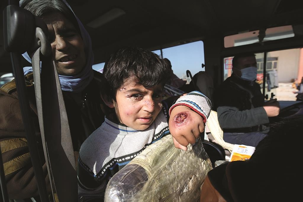 A Yazidi boy shows infections from mosquito bites he acquired while being held by the Islamic State as he waits inside a bus before being driven to the Kurdish city of Dohuk, in Alton Kupri, outside Kirkuk, Iraq, Sunday. (AP Photo/Bram Janssen)