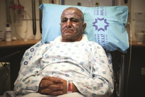 Moshe Chen, the Israeli police officer who was injured in an attempted bombing near Ma'ale Adumim on Sunday, recovering from wounds at Shaare Zedek Hospital in Yerushalayim. (Hadas Parush/Flash90)