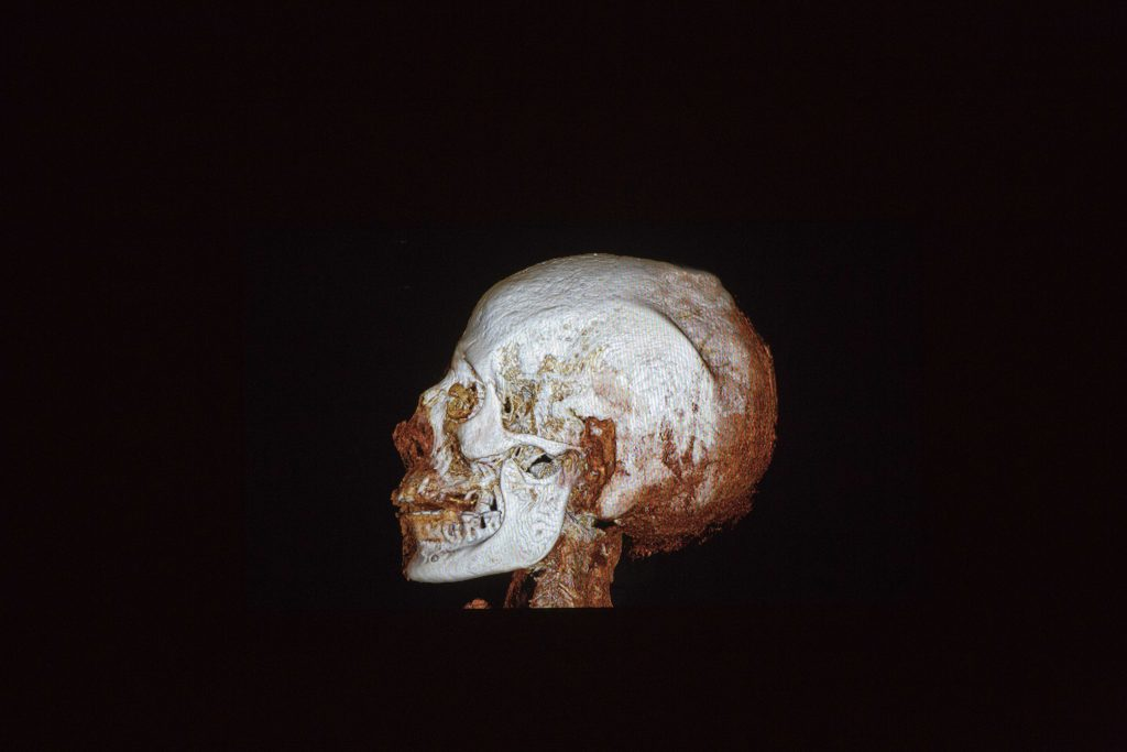 A CT (computerized tomography) scan of an ancient Egyptian mummy at the Israel Museum in Yerushalayim. (AP Photo/Ariel Schalit)