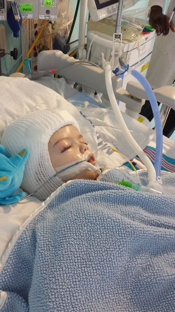 Jadon, post-surgery. (Nicole McDonald/Facebook)