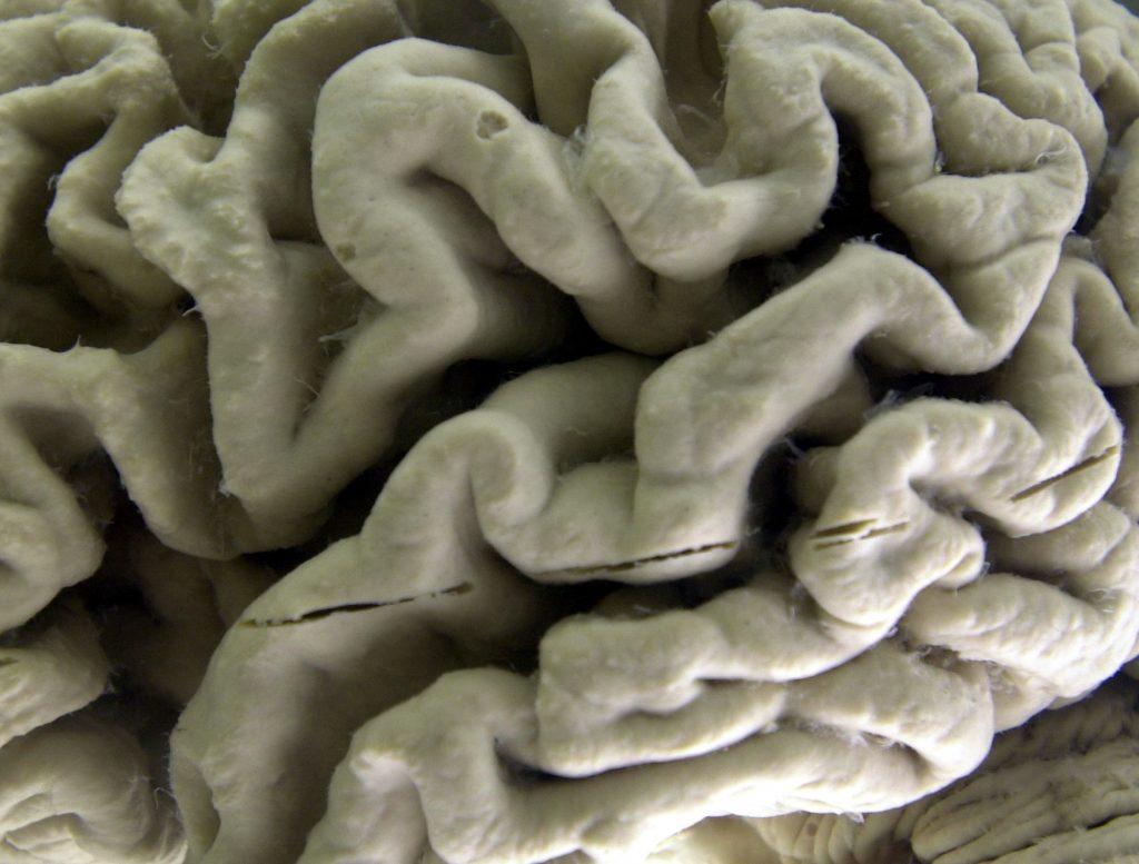 Alzheimer's , dementia