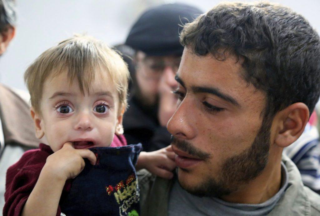 Syria hunger